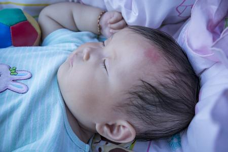 Muggenbeten (bult) Baby hoofden tijdens het slapen.
