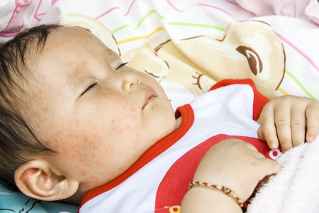 Close up of the face of a sick baby roseola infantum 写真素材