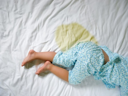 Bedwetting ,Child pee on a mattress,Little girl feet and pee in bed sheet,Child development concept ,selected focus at wet on the bed Фото со стока