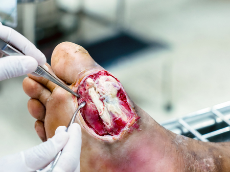 Diabetic wounds are often slow to heal require medical attention and monitoring,Diabetic foot infections.