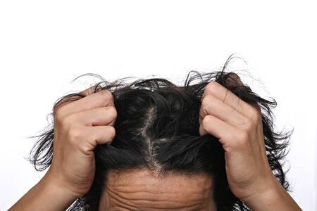 Man is checking hair, dandruff problems and face skin problems close up on white background
