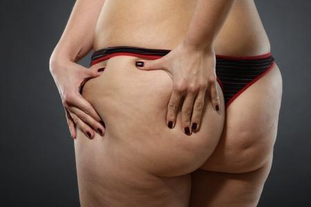 Frau zeigt Cellulite - schlechte Zustand der Haut