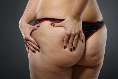liposuction: Woman showing Cellulite - bad skin condition Stock Photo