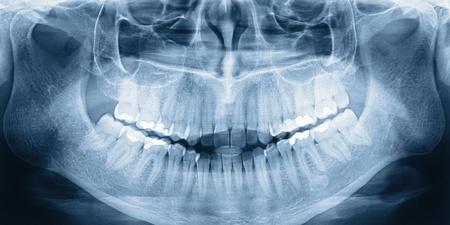 human jaw bone: X-ray scan of humans teeth