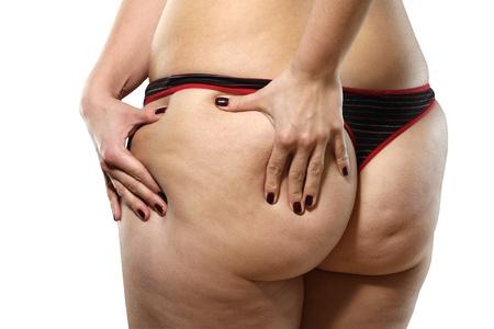 Frau zeigt Cellulite - isoliert auf weiß