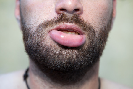 Male lip swollen due to  bee sting