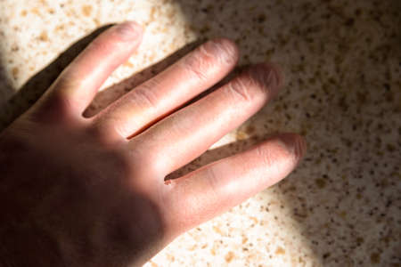 male hand in rubber gloves under bright sun in kitchen during covid 19 lockdown Stock Photo
