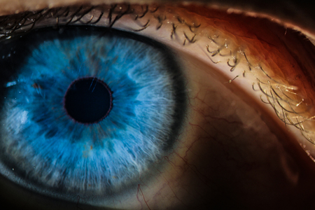 An enlarged image of eye with a blue iris, eyelashes and sclera. the shot is made by a slit lamp with a built-in camera