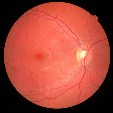 left eye's retinal image with macula, vessels and optic disc isolated view on a black bacground