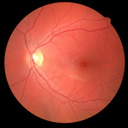 Netzhautbild des rechten Auges mit Makula, Gefäßen und Papille isolierte Ansicht auf einem schwarzen Hintergrund Standard-Bild