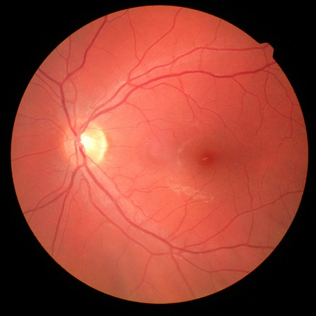 right eye's retinal image with macula, vessels and optic disc isolated view on a black bacground