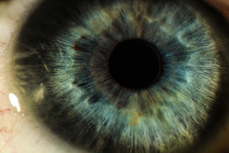 An enlarged image of eye with a green iris, eyelashes and sclera. the shot is made by a slit lamp with a built-in camera
