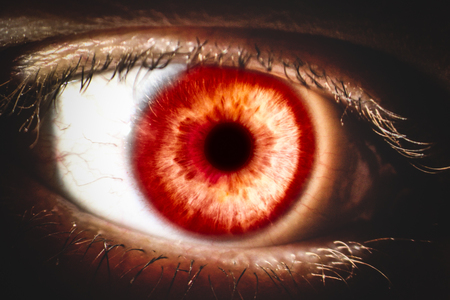 An enlarged image of eye with a brown iris, eyelashes and sclera. the shot is made by a slit lamp with integrated camera.