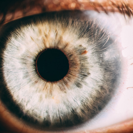Enlarged image of an eye iris made with a slit lamp