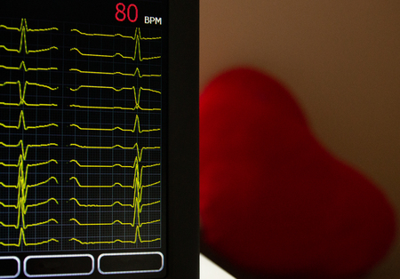 Screen of electrocardiograph device showing twelve yellow ECG cardiography rythm leads. With heart rate. A red heart shape on a blurry background