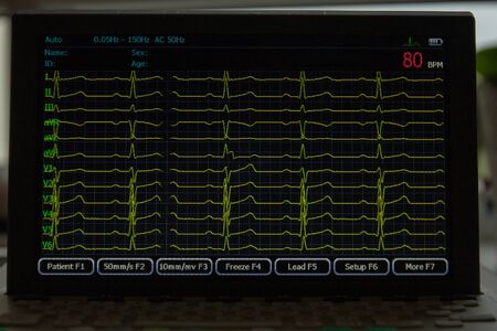 Screen of electrocardiograph device showing twelve yellow ECG cardiograph rhythm leads.