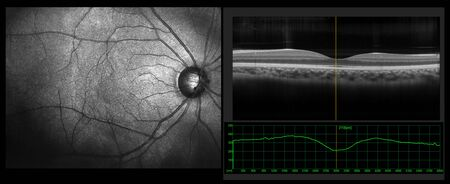 Ophthalmic test - OCT optical coherence tomography measurement. SLO Scan view of the macula in retina with vessels Фото со стока
