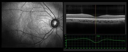 Prueba oftálmica: medición de tomografía de coherencia óptica OCT. Vista de escaneo SLO de la mácula en la retina con vasos