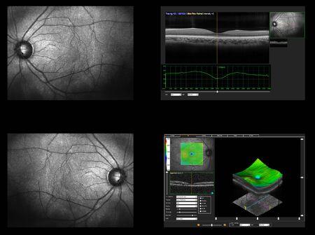 Prueba oftálmica: medición de tomografía de coherencia óptica OCT. Escaneo de la mácula en la retina, capas y grosor de la retina.