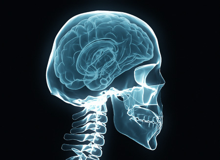 x rays negative: X-ray brain and skeleton isolated on black