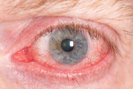 eye red: Close up of wide open red and irritated human eye Stock Photo