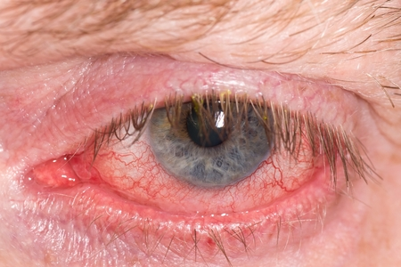 Half closed red and irritated eye with blood vessels Stock Photo