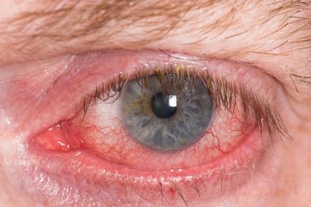 Bijna open rood en geïrriteerd oog met bloedvaten Stockfoto