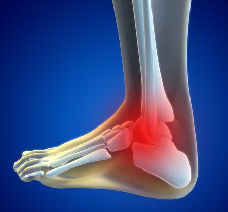 cuerpo femenino: Una ilustraci�n de un xray de pie con un spot que muestra el tobillo lesionado en rojo.