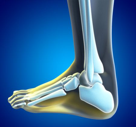 radiography: An illustration of a foot xray with a red spot showing the injured ankle.