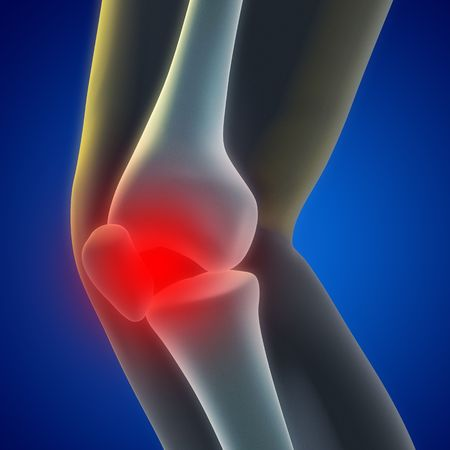 An illustration of a knee xray showing the injury. Stock Illustration - 7038014