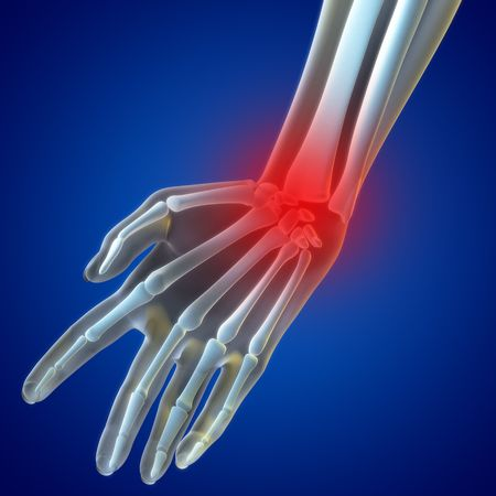 radiology: An illustration of a wrist xray showing the injury highlighted in red. Stock Photo