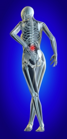 A 3d illustrated file of a womans lower back in pain showing skeleton and inflamed area