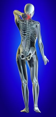 A 3d illustrated file of a womans neck in pain showing skeleton and inflamed area.