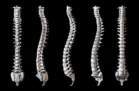 colonna vertebrale: A total of five human spines shown at 5 angles to rerveal the whole object.