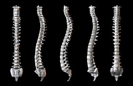 columna vertebral: Un total de cinco espinas humanos que se muestra en 5 �ngulos a rerveal de todo el objeto.