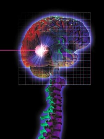 tumor: photo montage showing brain tumor being vaporized with radio surgery