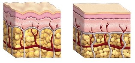 epiderme: coupes illustr�es de peau montrant la distribution en mati�res grasses dans les tissus sous-cutan�s avec la cellulite sur le diagramme de droit et les cellules normales de graisse sur le diagramme de droit
