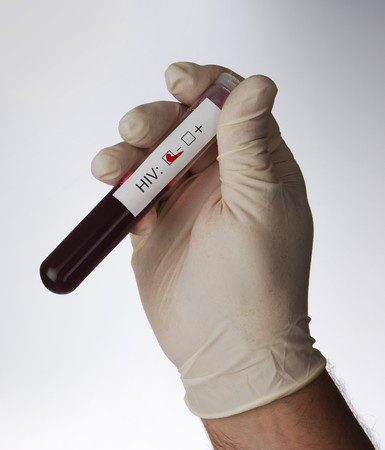 gloved hand holding test tube with blood sample and label indicating HIV negative test result