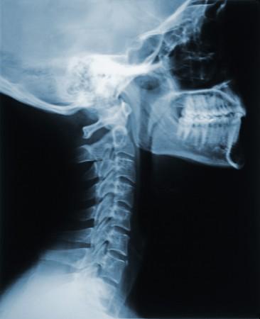 fractura: Esto es una radiograf�a del cuello  Foto de archivo