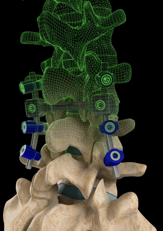 Rendering of a spine with a screw support system and a computer generated wire frame on a black background.