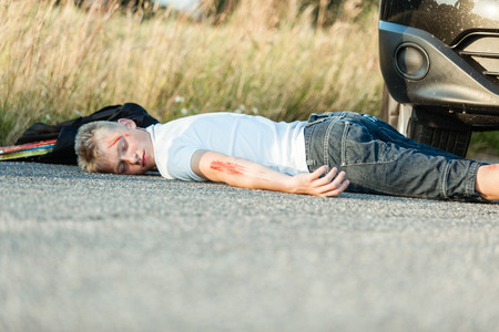 knocked over: Wounded Young Schoolboy Lying Dead on the Road After Bumped by the Private Car at Day Time.