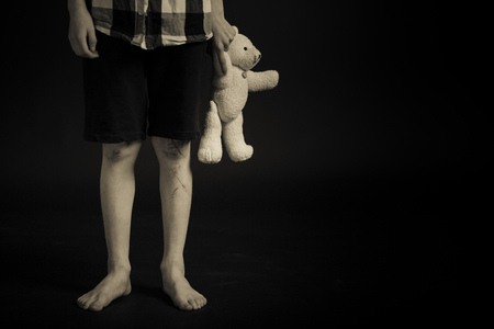 Lower Body Shot of a Young Boy with Legs Scars Holding his Teddy Bear Stuffed Toy Against Black Background with Copy Space.