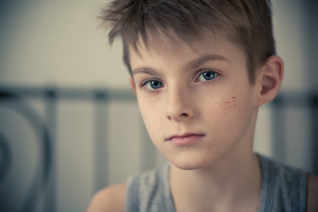 maltreatment: Head and Shoulder Shot of a Serious Young Boy with Small Scars on his Face, Staring Straight at the Camera.