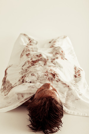 morgue: Burnt Corpse of a Young Boy Lying on the Table with White Cloth Cover Inside a Morgue.