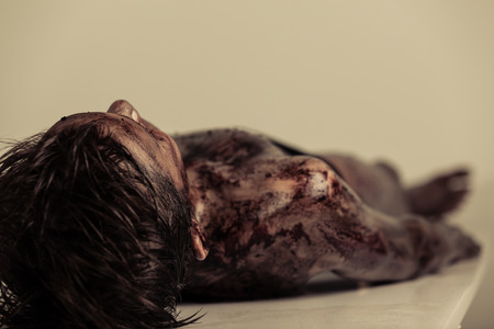 bloodied: Close up Burnt Body of a Dead Young Boy Lying on the Table in Morgue, Emphasizing Head and Shoulder. Stock Photo