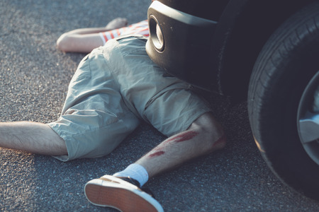 single child: Graphic imagery of single child in shorts with bent bloody leg in front of stopped car Stock Photo