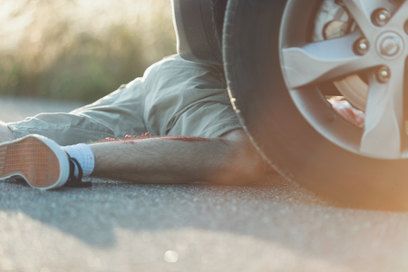 mva: Legs of unidentifiable male in gray shorts and blood on legs hit by car. Wheel of vehicle is near his knee. Stock Photo