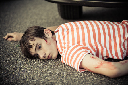 eyes open: Unconscious boy with head injury, eyes open and scratched arm laying down in front of stopped car