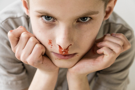 haemorrhage: Close Up Head and Shoulders Portrait of Young Boy with Bloody Nose Staring Up at Camera with Hands on Chin in Studio with Light Colored Background