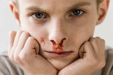 haemorrhage: Close Up Head and Shoulders Portrait of Young Boy with Bloody Nose Resting Chin in Hands and Staring Intently at Camera in Studio with Light Colored Background Stock Photo